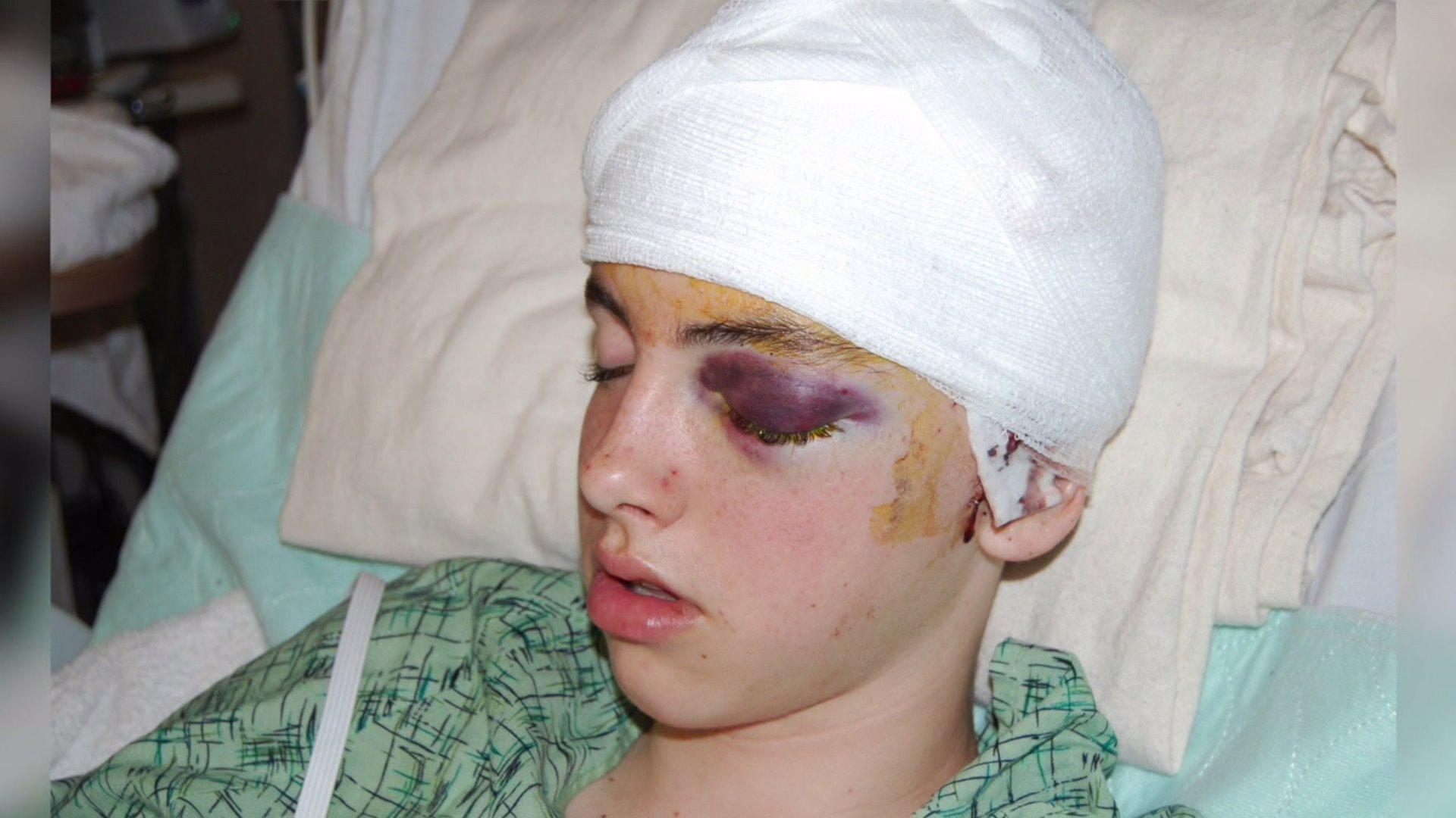 Slattery injury